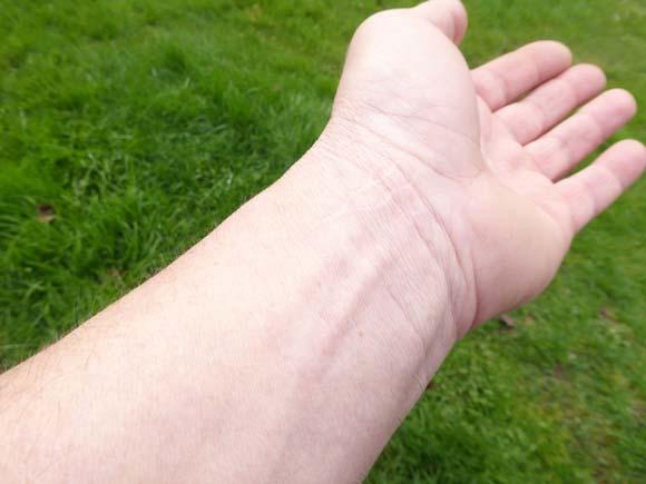 Photo quelques mois plus tard : légères cicatrices visibles sur les blessures les plus profondes